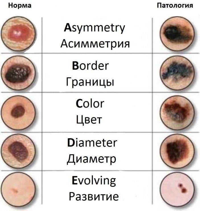 Параметры диагностики