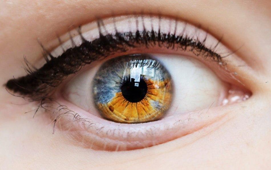 Секторная гетерохроми глаз
