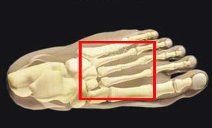 Плюснеевые кости