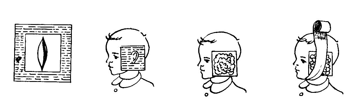 Техника накладывания компресса на ухо.