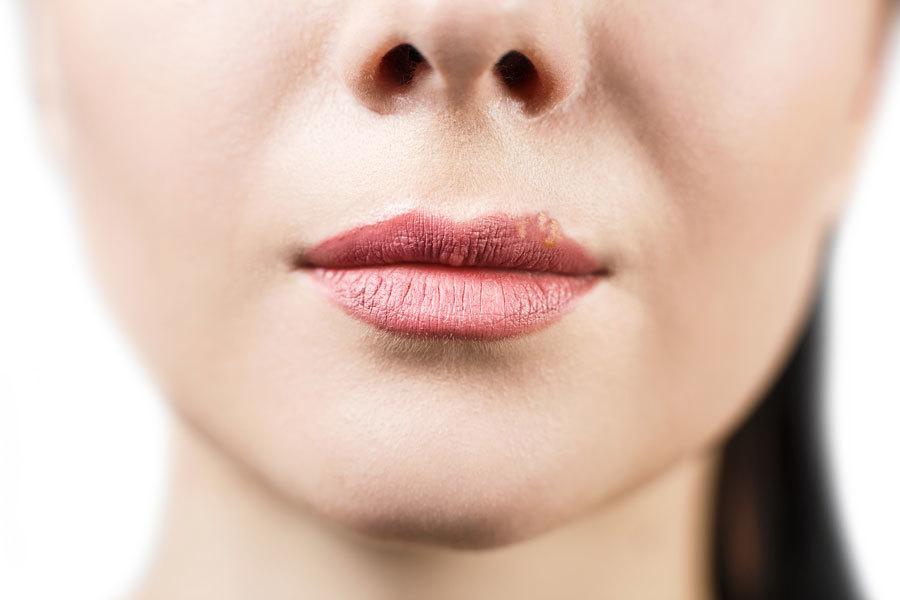 Герпес на губах - лечение