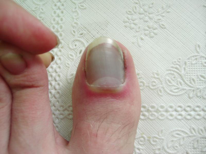 При ушибе ногтя необходимо приложить холод