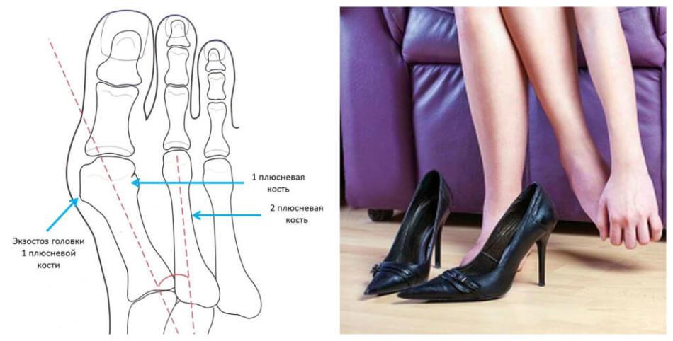 Узкий носок туфлей и высокий каблук могут вызвать онемение пальцев ног