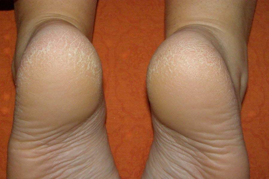 Трещины на ногах