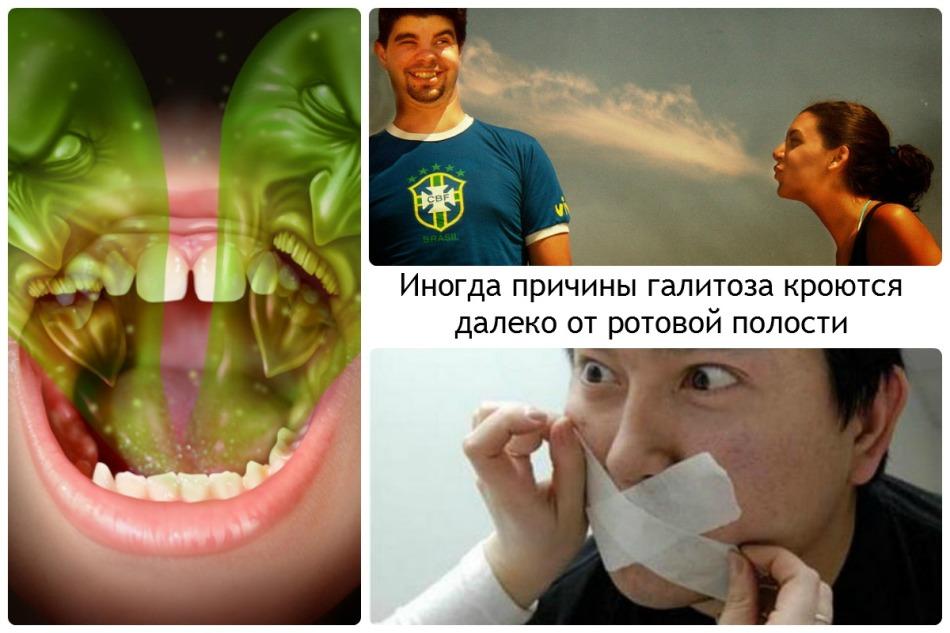 Плохо пахнет изо рта: причины галитоза