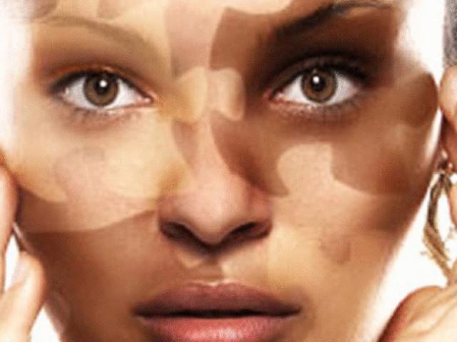 кожное заболевание витилиго