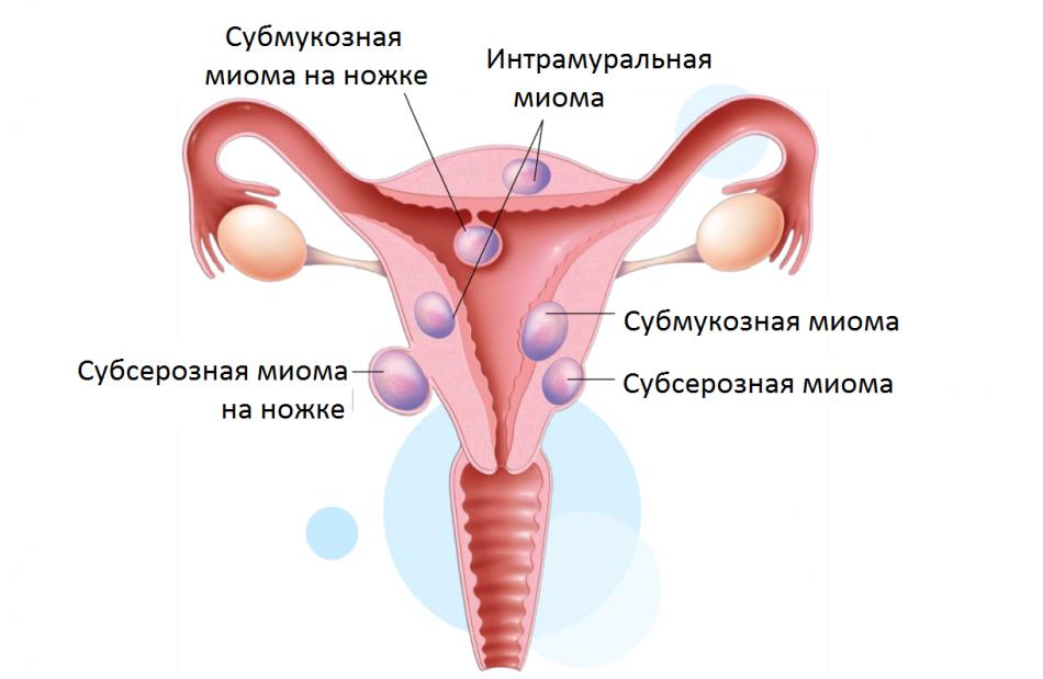 Вероятность беременности при субсерозной миоме матки