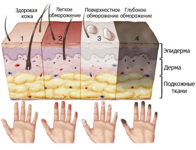 Поражение кожи при обморожениях разной степени тяжести.