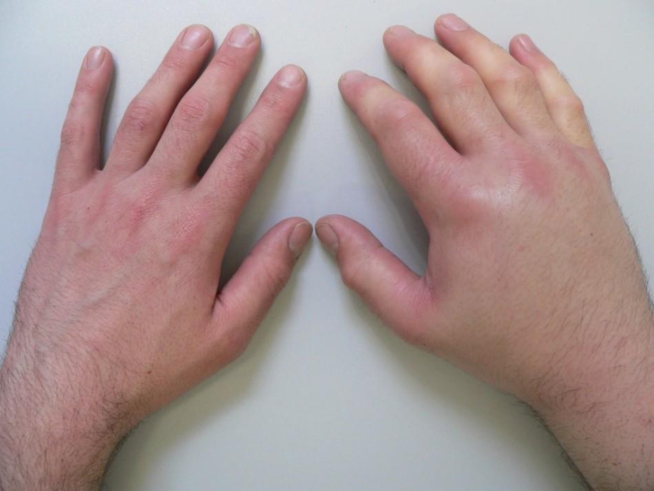 У мужчины одна рука опухла, а вторая здорова