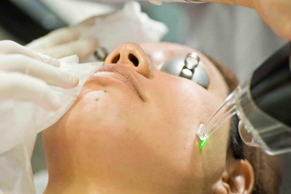 Как убрать шрамы от прыщей на лице: цены, процедуры, советы