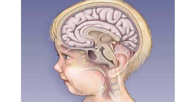 Признаки и симптомы менингита у детей до года, 2, 3, 4, 5, 6, 7-10 лет, подростков