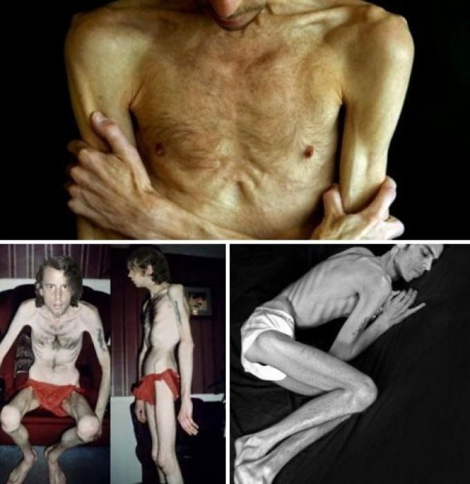 Анорексия у парней может иметь острое течение!