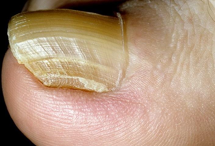 Аллергический гиперкератоз ногтей