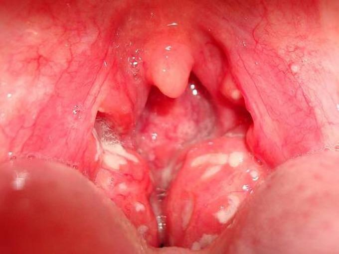 Покраснение миндалин - один из симптомов тонзиллита