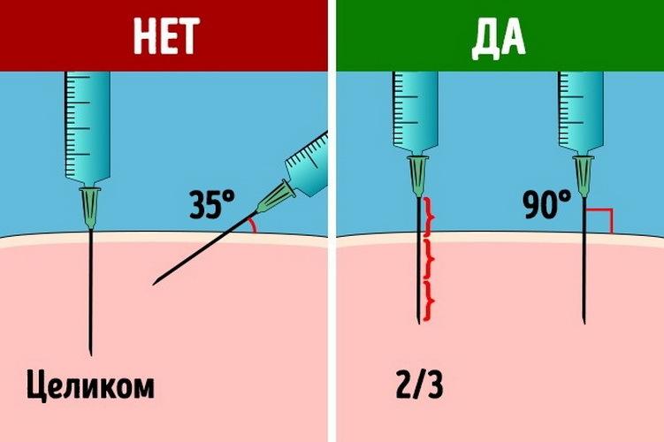 Как правильно ввести иглу при внутримышечной инъекции?