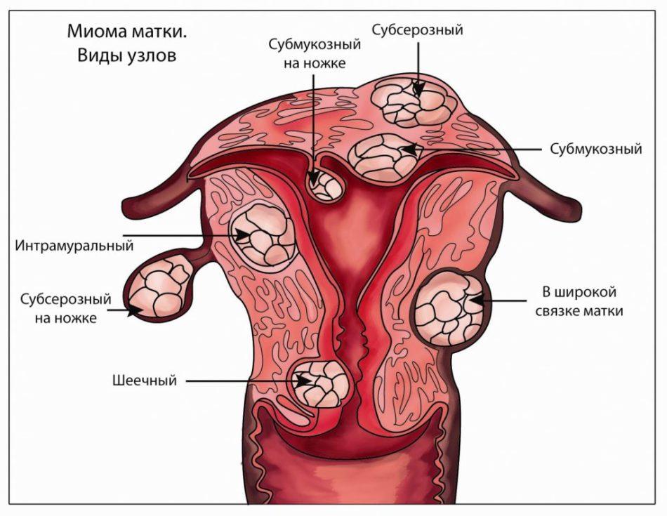 Множественная миома матки и беременность