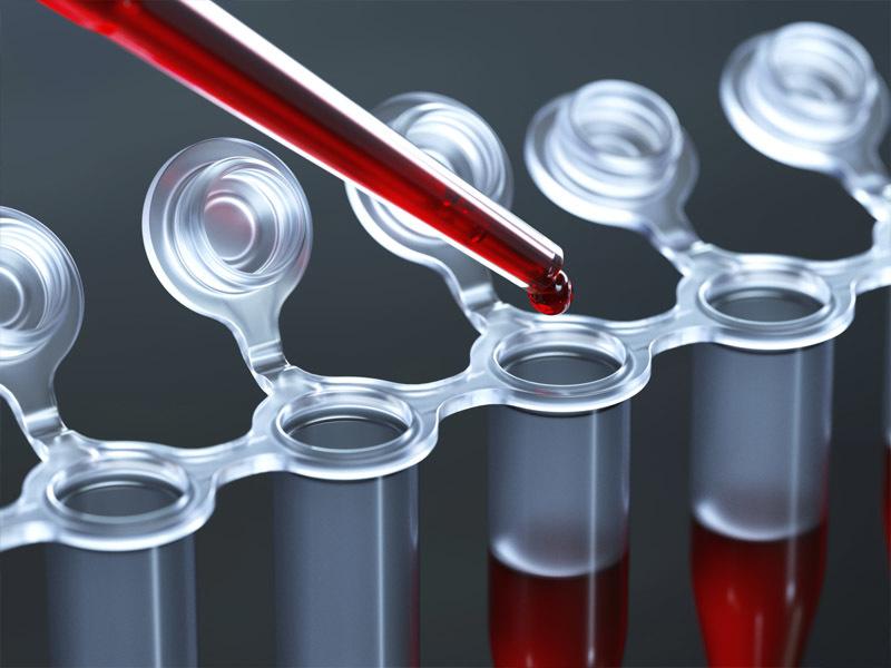 Анализ крове также результативен в диагностике глистов