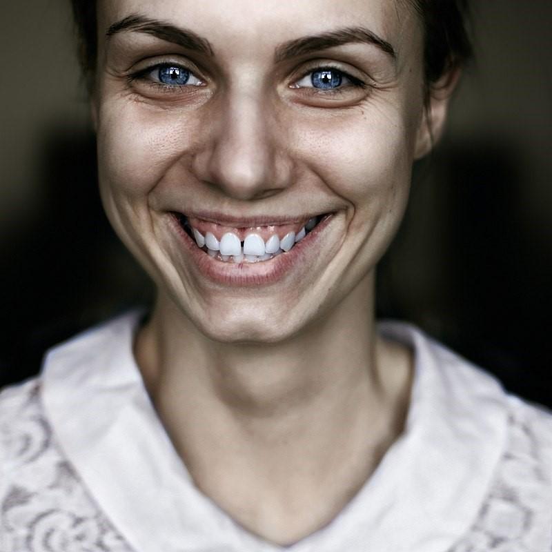 Смех без причины по физиогномике - один из признаков психических расстройств