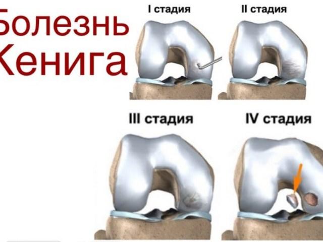 Заговор о смещении сустава что делают при растяжении локтевого сустава