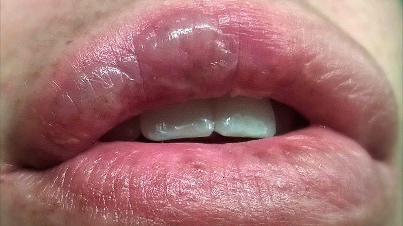 Ожог губы.