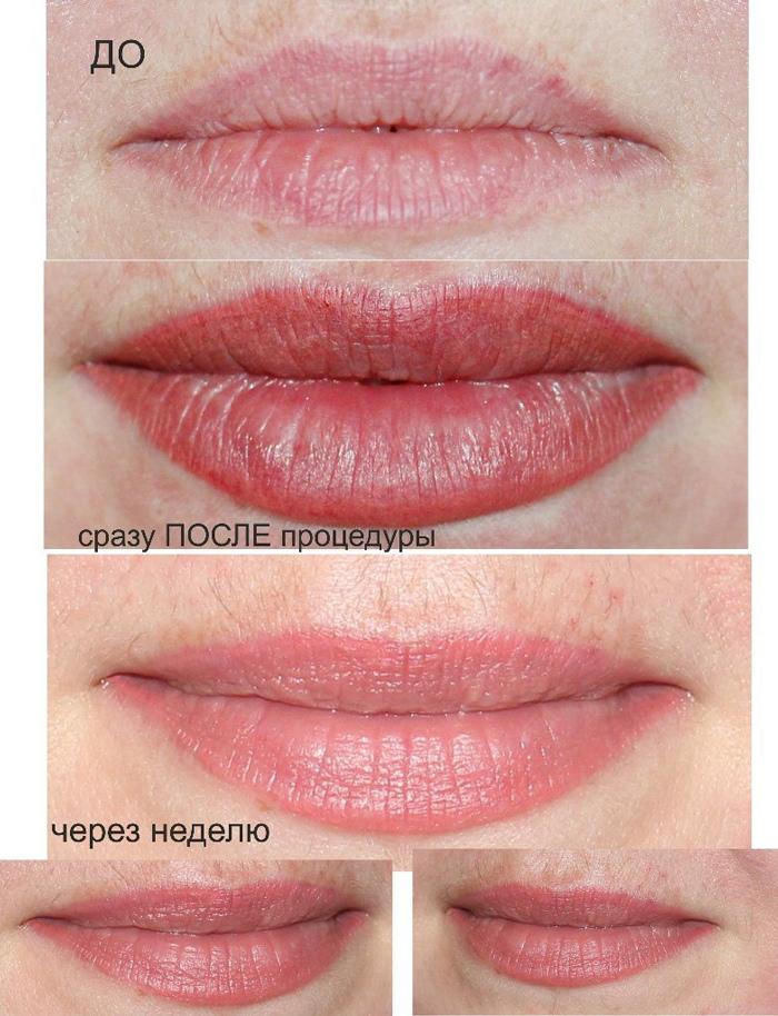 tatuzh-gub-do-proceduri-zazhivlenie-konechnii-rezultat Татуаж губ: фото до и после, с растушевкой цвета и контура. Заживление после татуажа. Видео