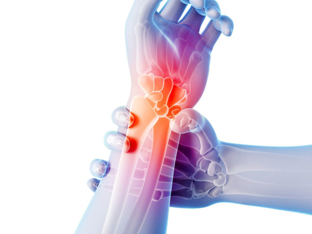 артрит плечевого сустава препараты Должен Вам