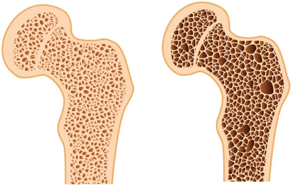 Слева — здоровая кость, справа — кость, потерявшая свою плотность (пораженная остеопорозом)