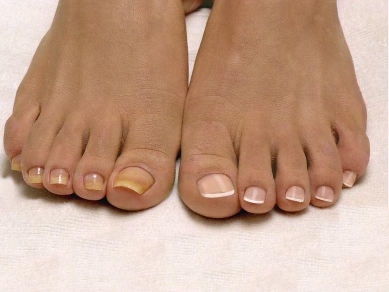 Перед протезированием ногтей необходимо пройти курс лечения от грибка