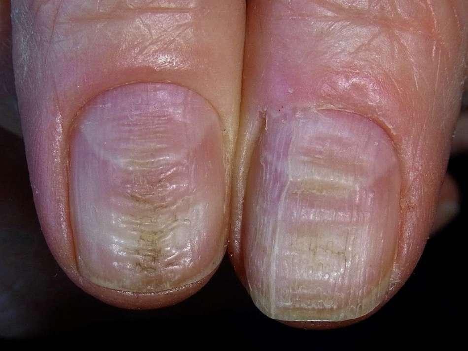 Бугры на ногтях