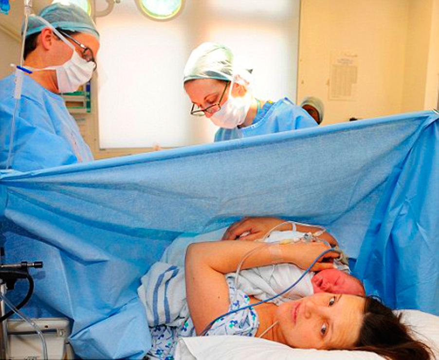 Спинальная анестезия при кесаревом сечении