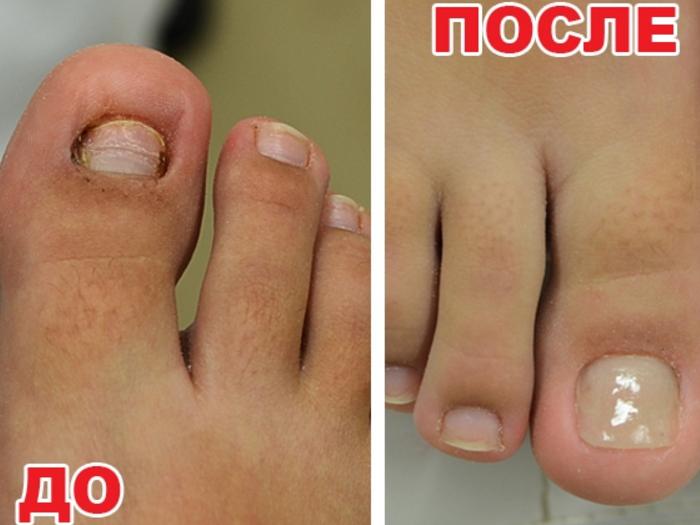 При протезировании ногтей используются медицинские пластические массы