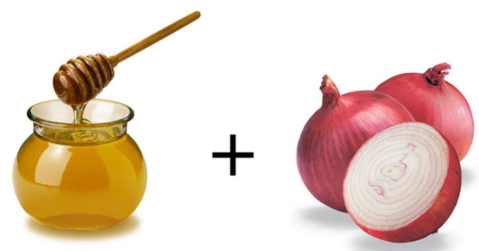 Мед и лук - основные компоненты народных рецептов лечения коклюша