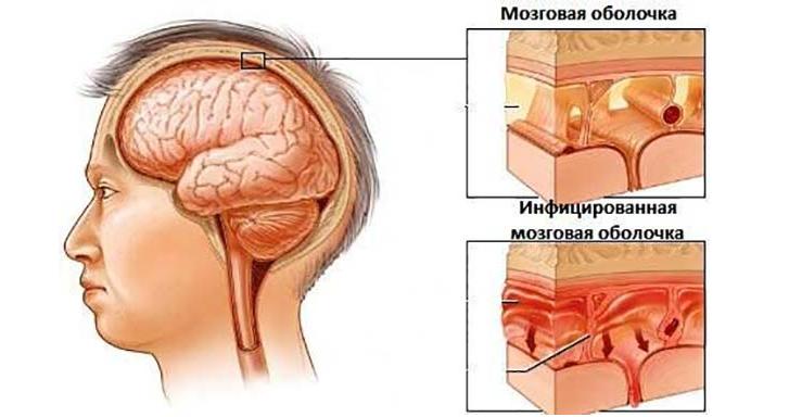 Инфекционный вирус менингита