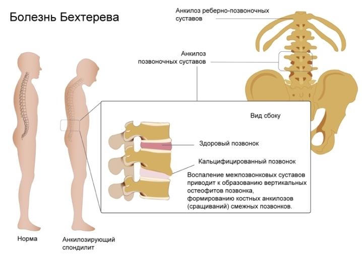 Болит спина и позвоночник после сна при болезни бехтерева