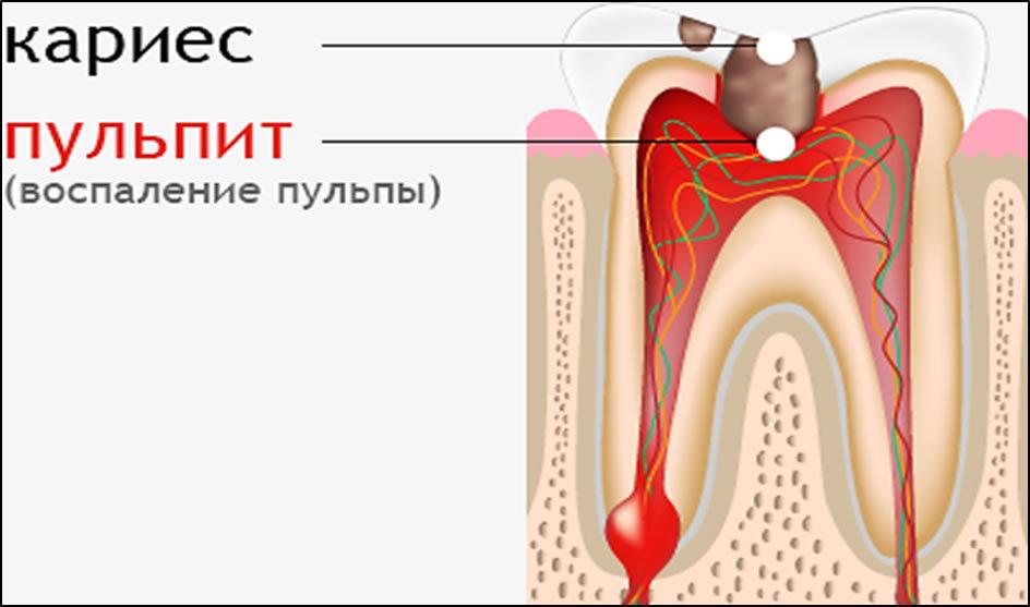 Заболевания зуба