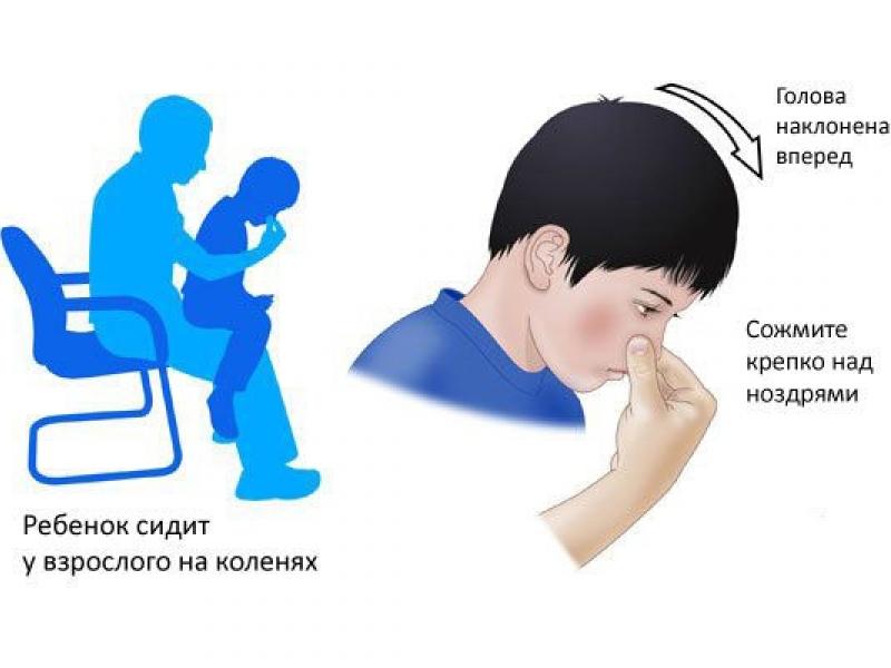 Правильные действия для остановки носового кровотечения