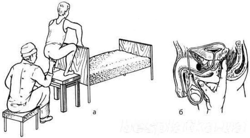 Простатит масажи видео уроантисептики при простатите