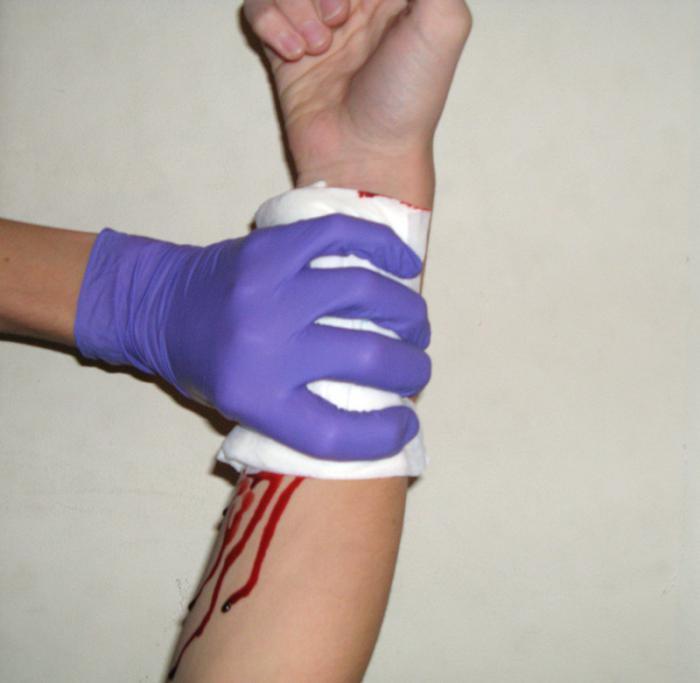 При венозном кровотечении накладывают давящую повязку.