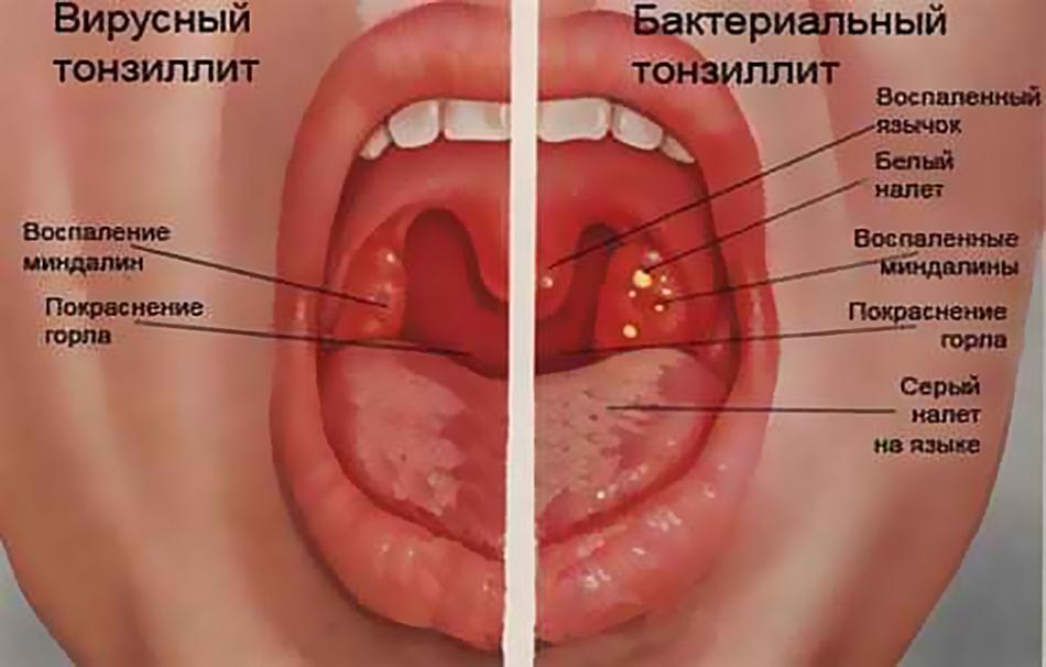 Виды ангины (тонзиллита)