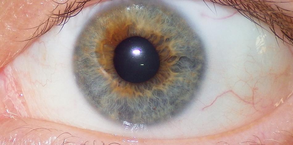Приобретенная гетерохромия может быть симптомом серьезного заболевания глаз