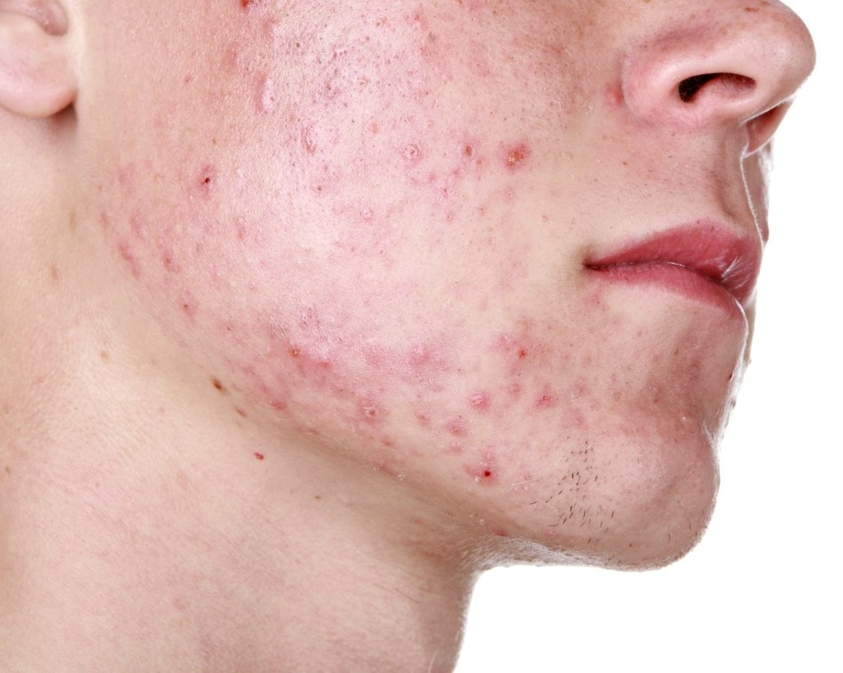 Сыпь при болезнях печени, фото красных точек