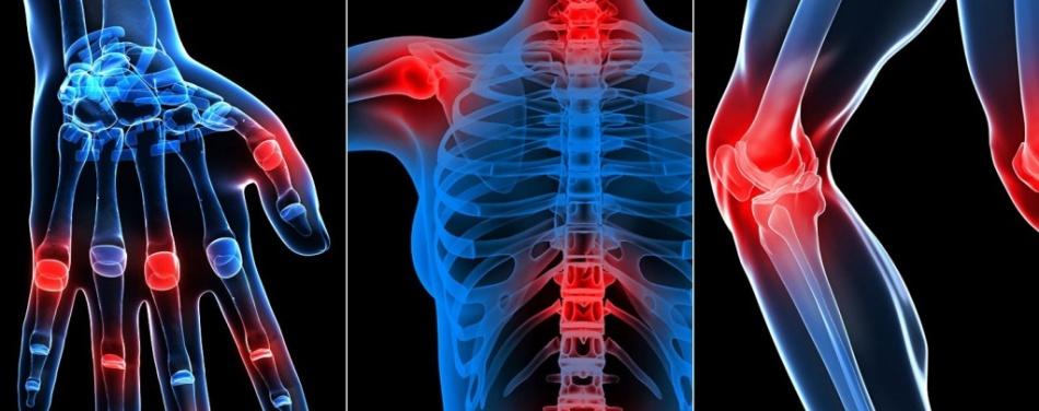 Болезнь может быть как в верхних так и нижних суставах