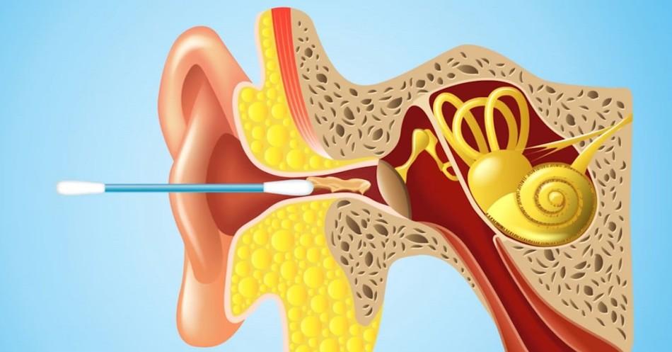 Ватная палочка в процессе чистки ушей способна загнать серную пробку еще дальше в ухо