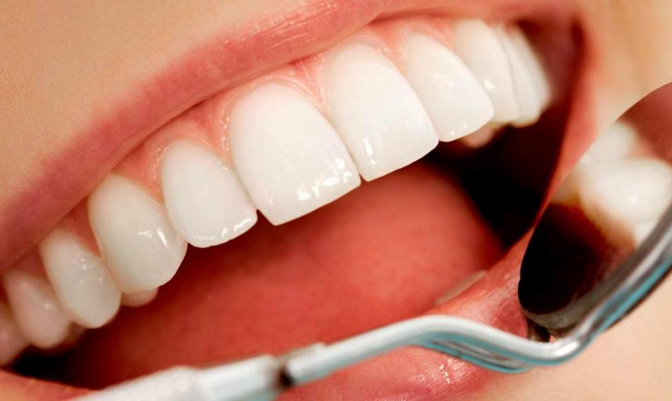Красивые зубные виниры