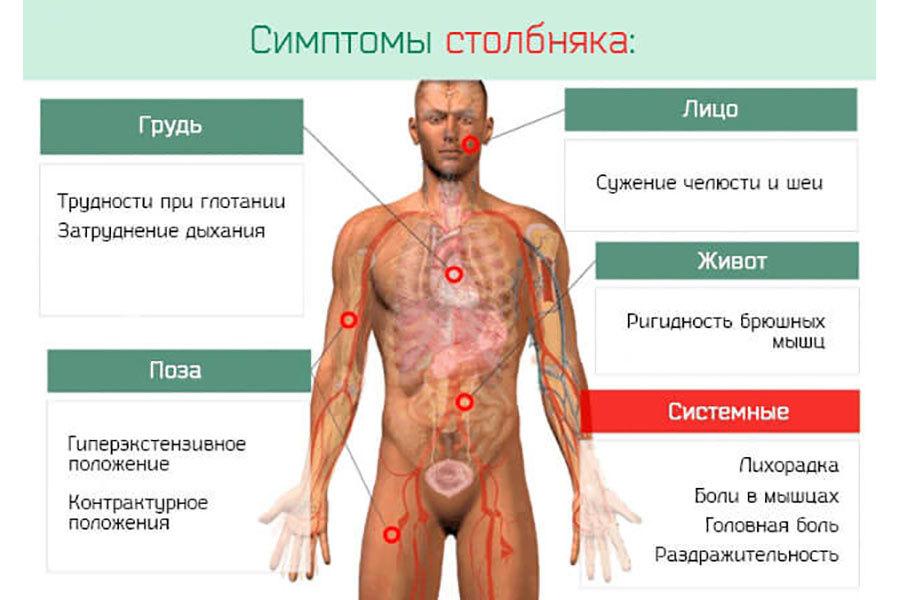 Изображение 3. основные симптомы столбняка.