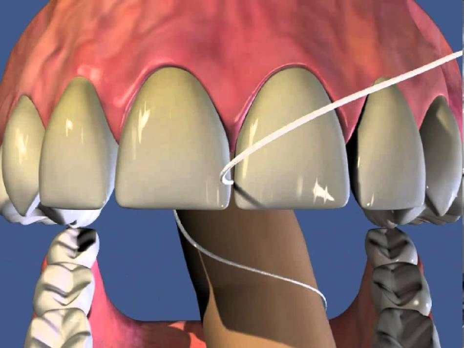 Принцип действия зубной нити