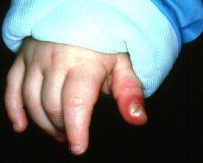 Нарыв на пальце у ребенка.