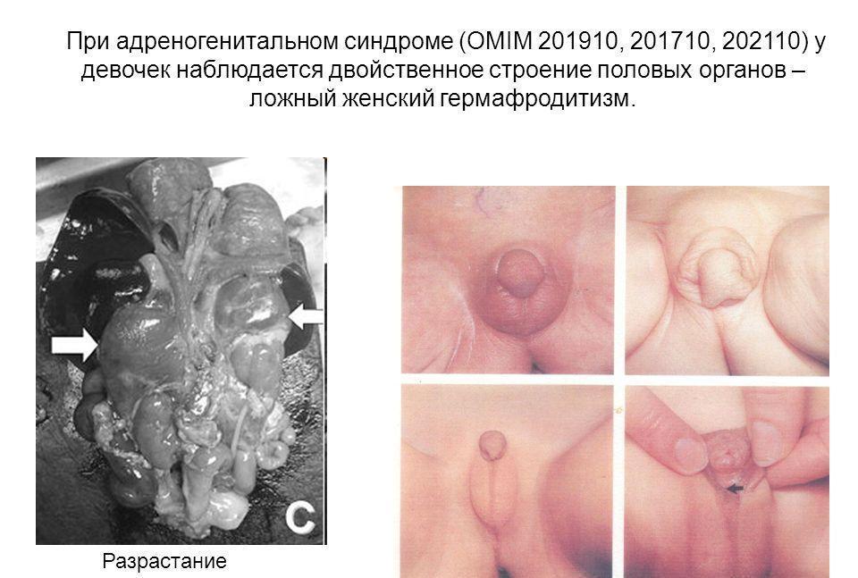 Как выглядят гениталии, половые органы людей гермафродитов: схема расположения