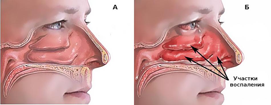 Воспаление при хроническом насморке